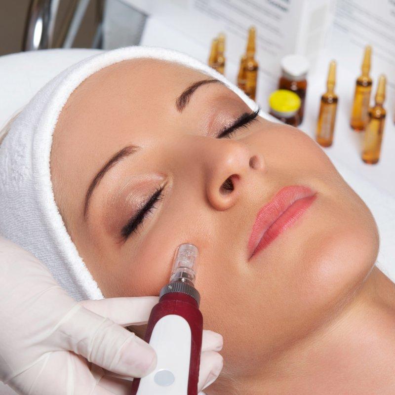 Эффективность омолаживания кожи лица фракционной мезотерапией