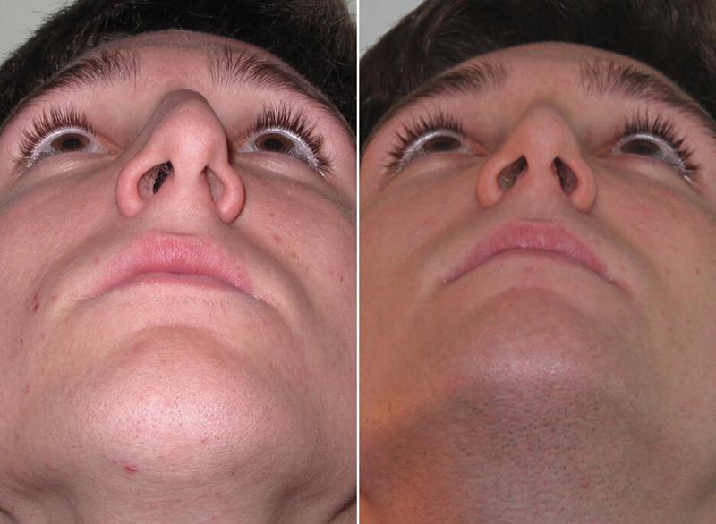 Септопластика носовой перегородки: поможет ли операция восстановить свободное дыхание