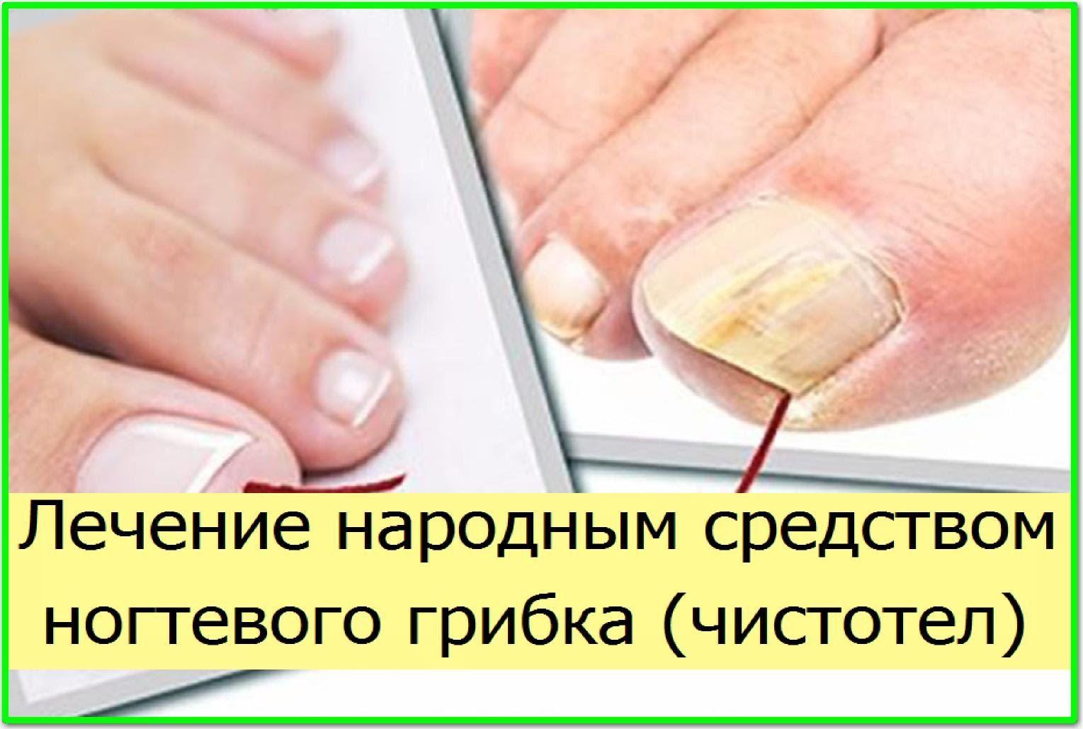 Самые эффективные народные средства лечения грибка ногтей