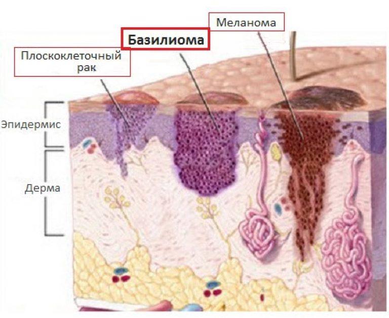 Базалиома кожи лица: фото разных стадий, лечение, мази
