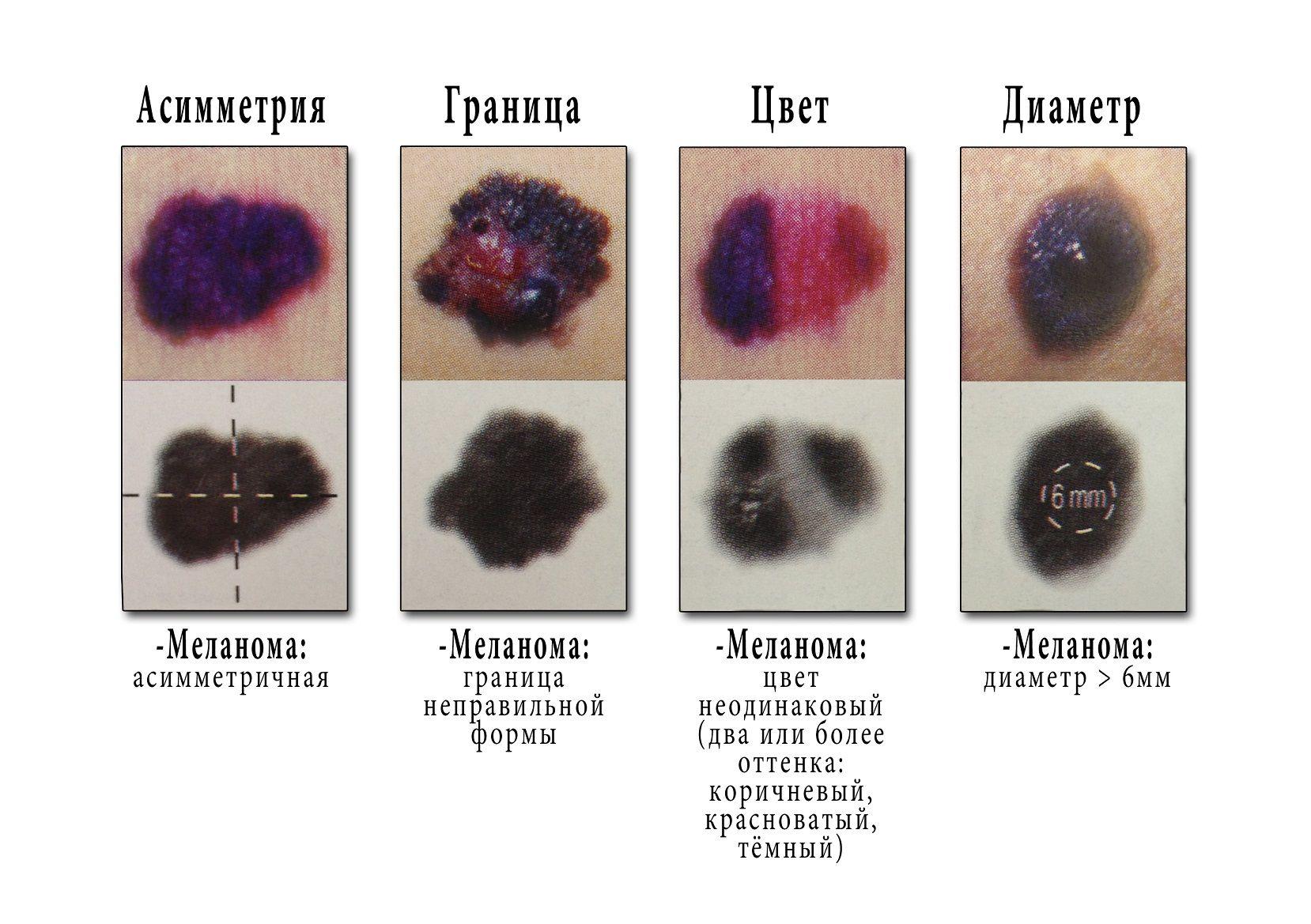 Беспигментная меланома