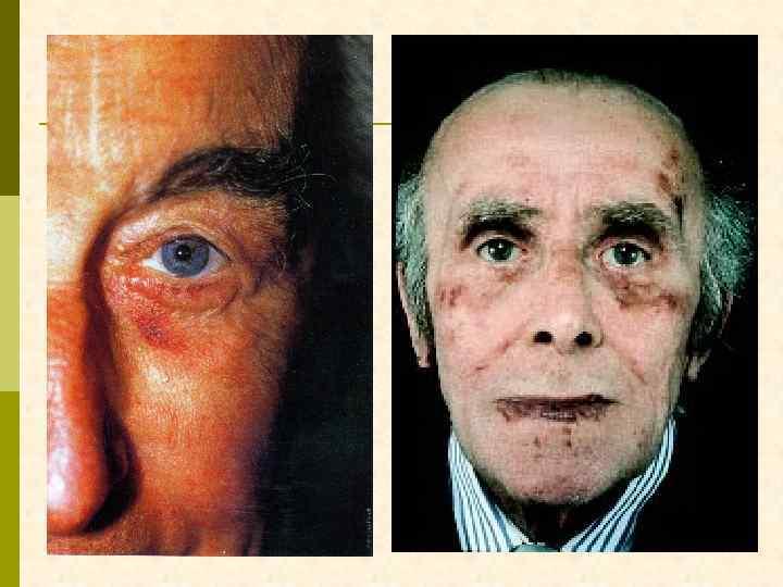 Амилоидоз: понятие, теории развития, симптомы и течение, лечение
