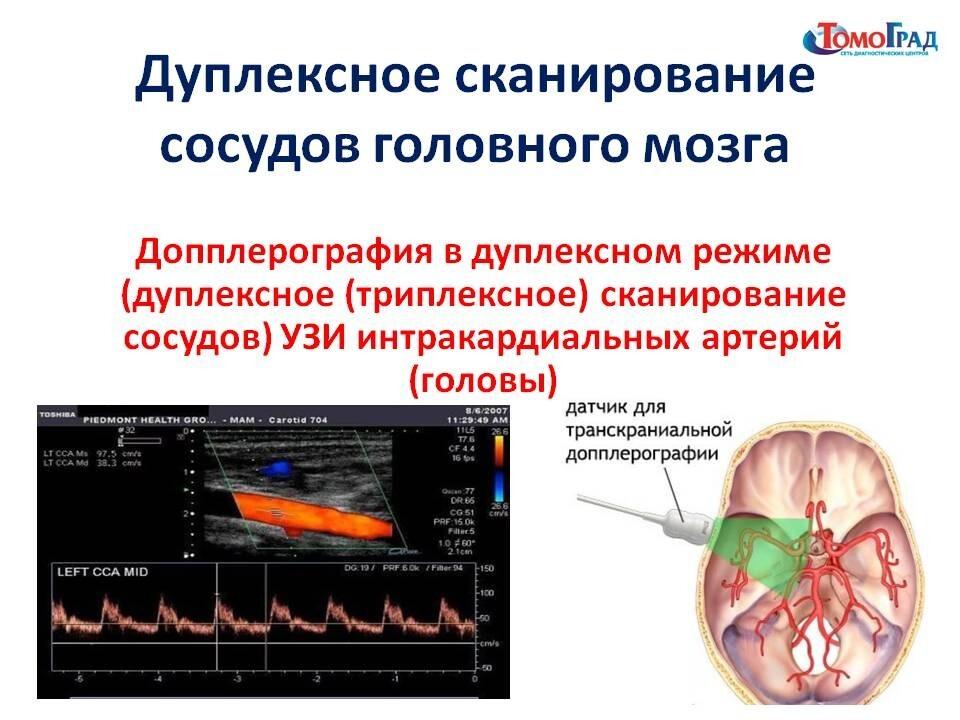 Сосуды шеи: роль, патология, диагностика (узи/уздг, мрт, мскт), лечение