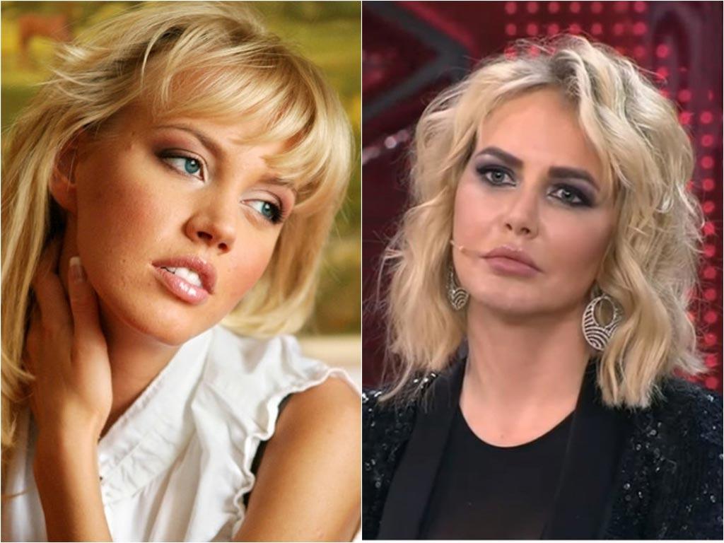 Вы их не узнаете: 12 звёзд российского instagram до и после пластики
