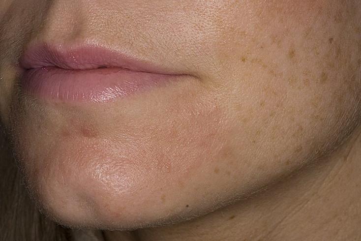 Виды кожных дерматитов
