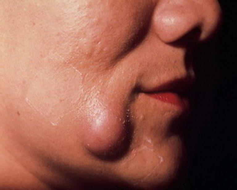 Атерома уха — признаки, диагностика, способы устранения