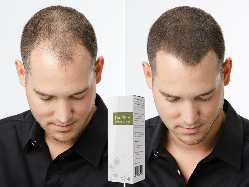 Самые эффективные средства от облысения и для роста волос у мужчин: шампуни, народные рецепты