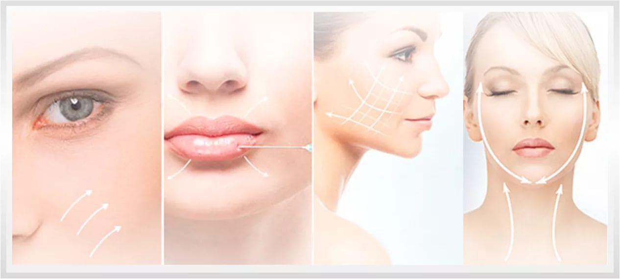 Контурная пластика лица филлерами. фото, как делается коррекция овала, моделирование, подтяжка, армирование