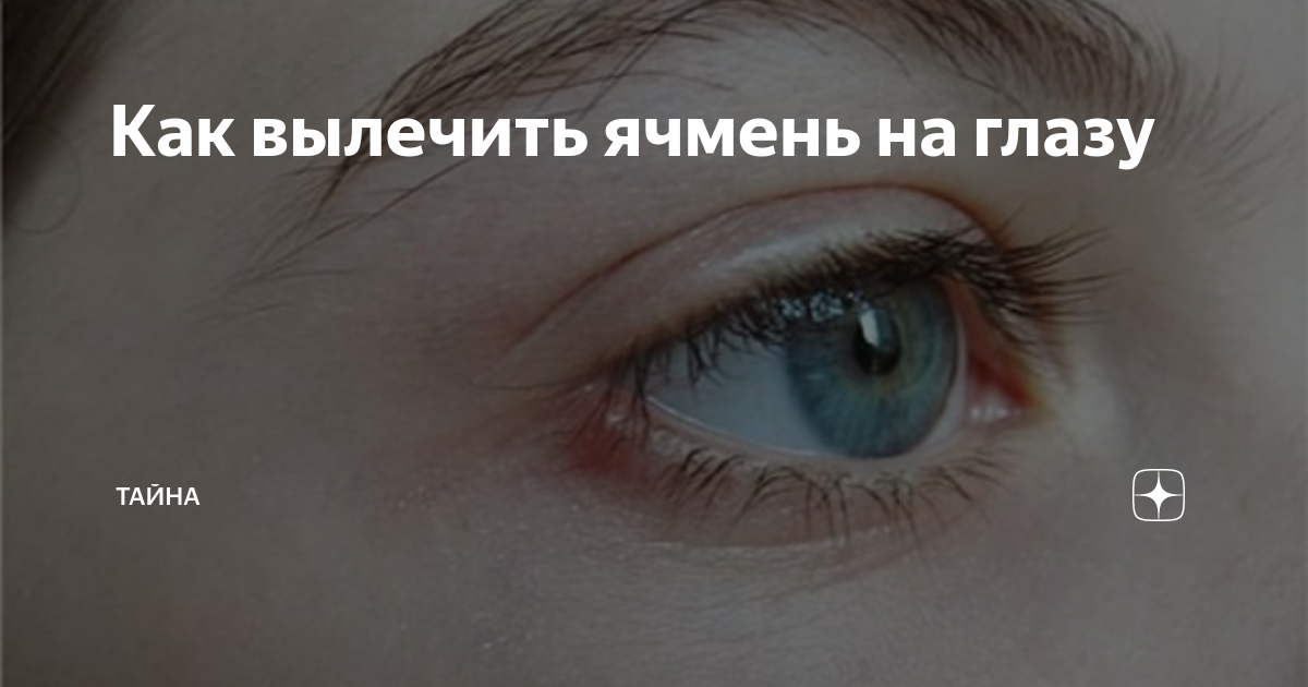 Ячмень на глазу – как лечить быстро и дома?