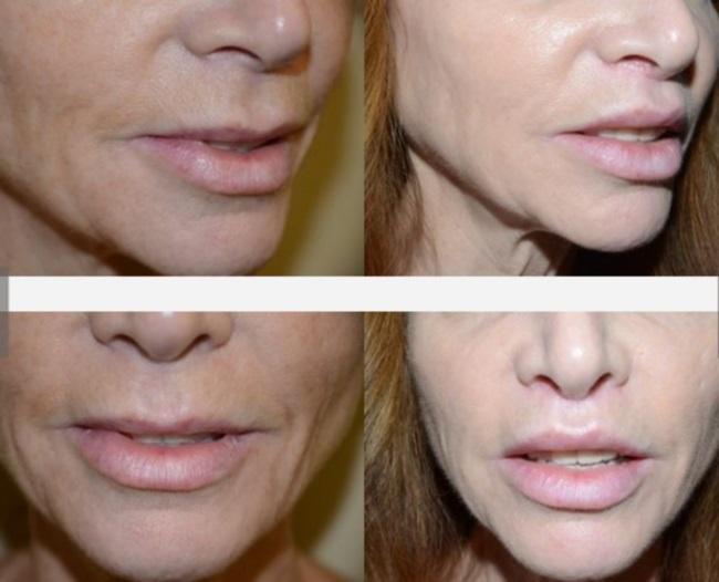 Изменение формы губ (хейлопластика) и ее основные виды