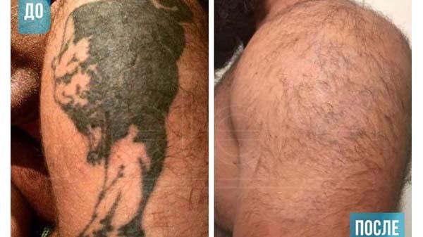 Лазерное удаление тату в москве