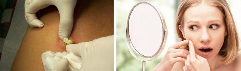 Жировики на лице причины возникновения и способы лечения   women planet