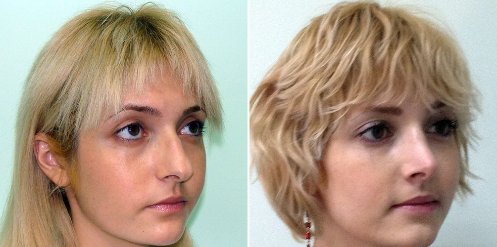 Ринопластика носа — что это такое, цена, фото до и после
