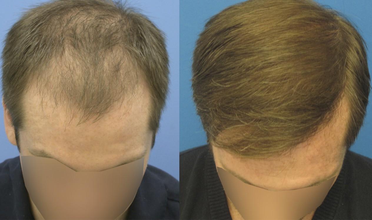 Лечение волос от выпадения народными средствами в домашних условиях