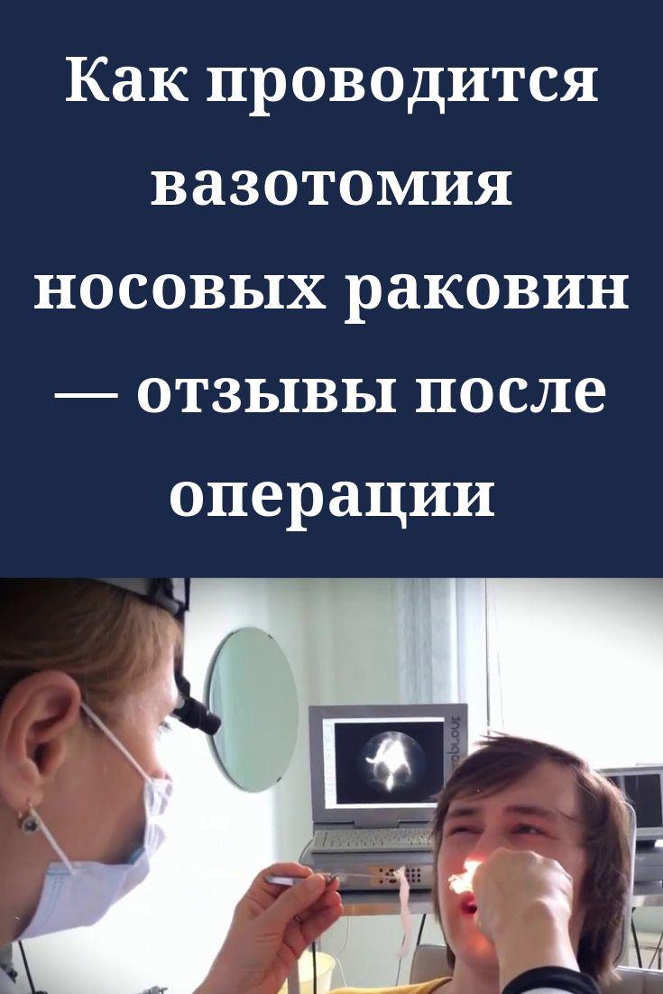 Вазотомия - операция на носовых раковинах