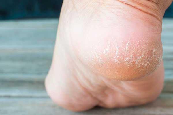Трещины на пальцах ног и стопах: что предпринять