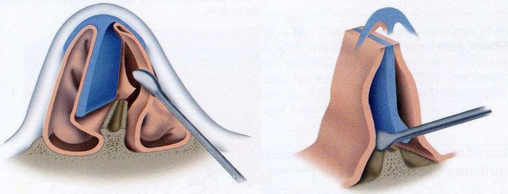 Особенности септопластики носовой перегородки. преимущества и недостатки операции