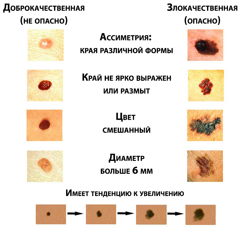 Меланома кожи: что это, фото, как выглядит, симптомы, лечение