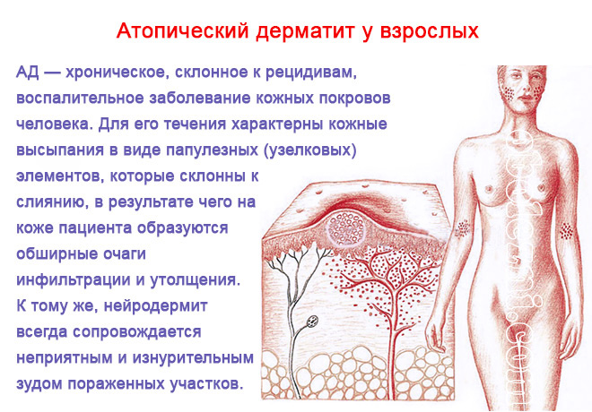 Нейродермит — причины и лечение