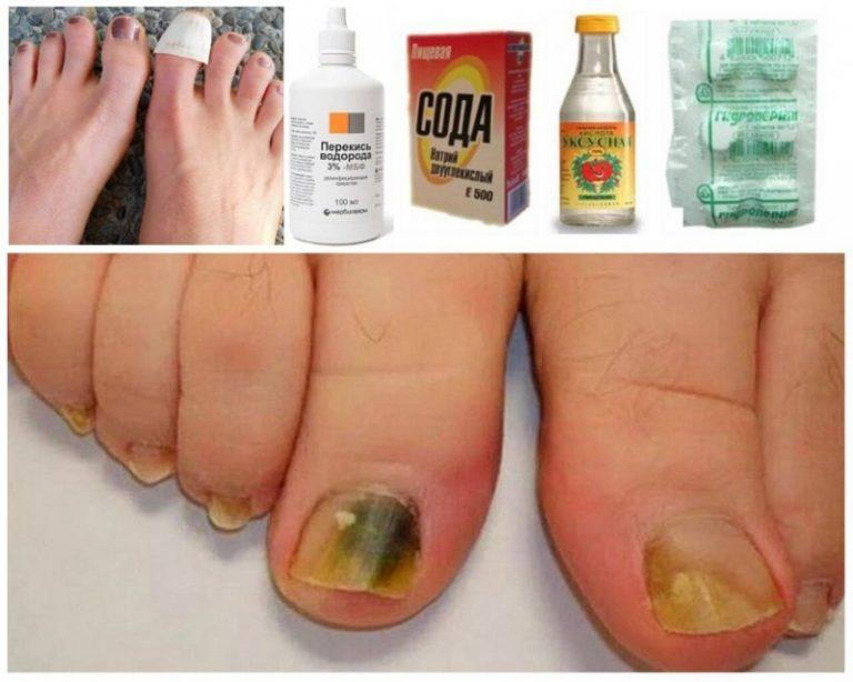 Грибок ногтей. лечение народными средствами