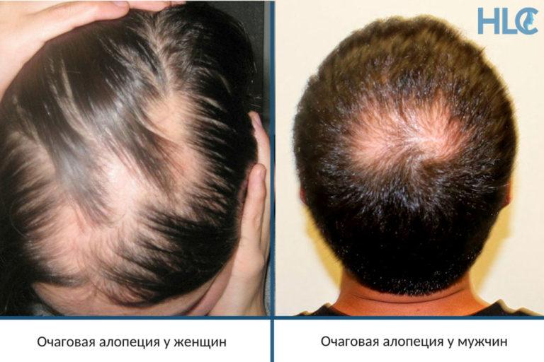 Диффузная телогеновая алопеция симптомы и лечение