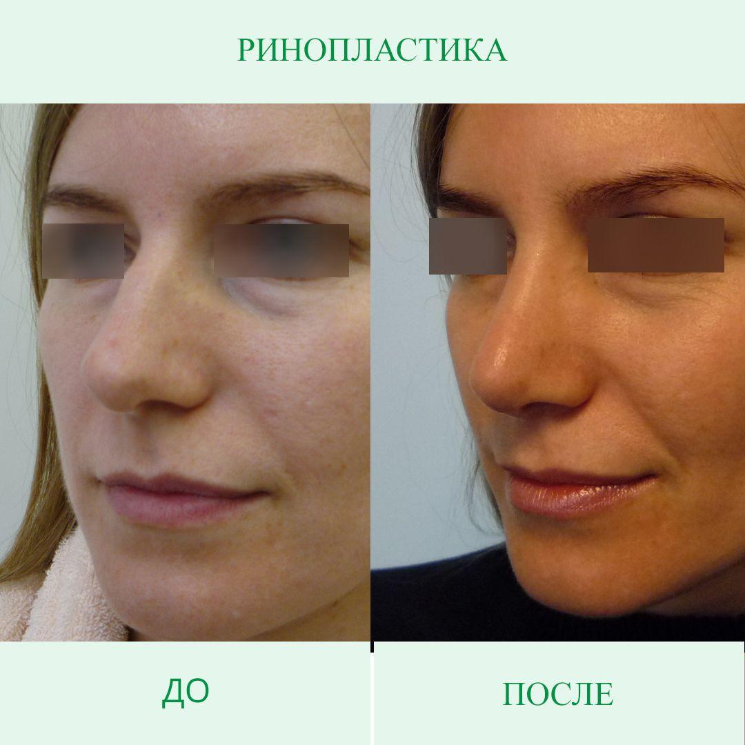 Нос Кейт Миддлтон и еще 9 самых популярных форм носа для ринопластики