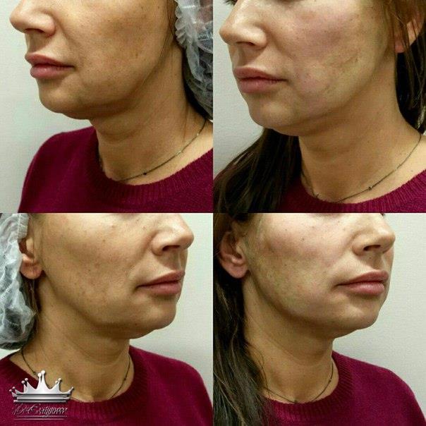 Подтяжка лица нитями аптос: описание, реабилитация после процедуры, результаты до и после