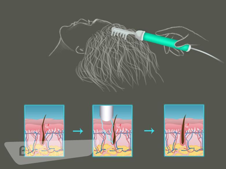 Как пользоваться Дарсонвалем для волос