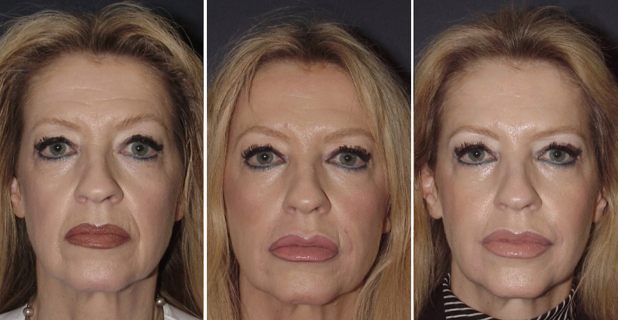 Ботокс: особенности препарата, применение в косметологии, показания и противопоказания