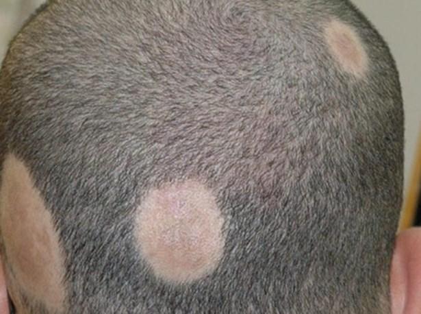 Очаговая (гнездная) алопеция: ее сиптомы, причины и лечение