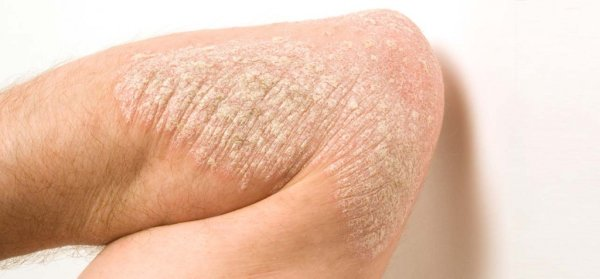 Псориаз: начальная симптоматика, фото болезни и эффективные методы лечения