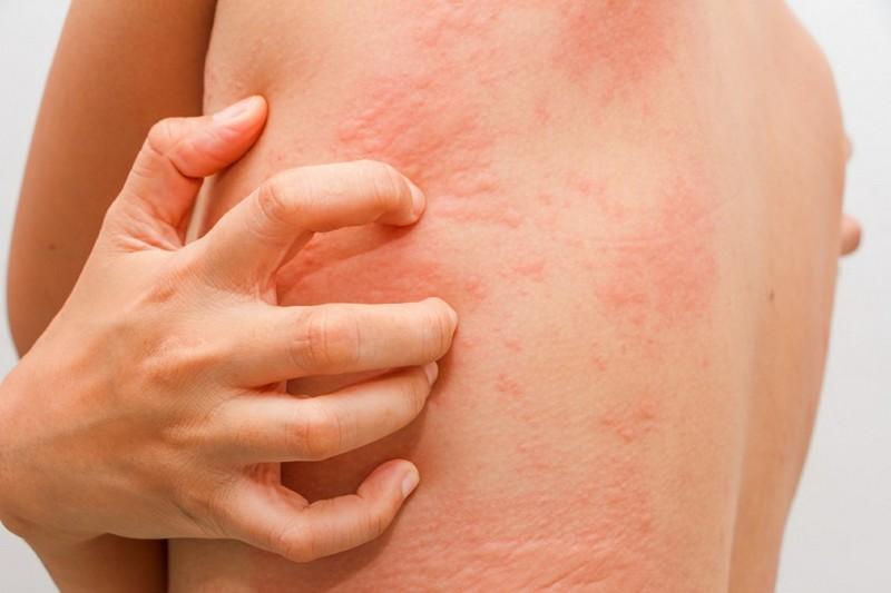 Причины и симптомы контактного дерматита у взрослых