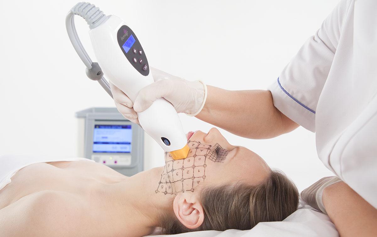 Рф-лифтинг лица: отзывы врачей косметологов, описание процедуры, противопоказания. rf-лифтинг