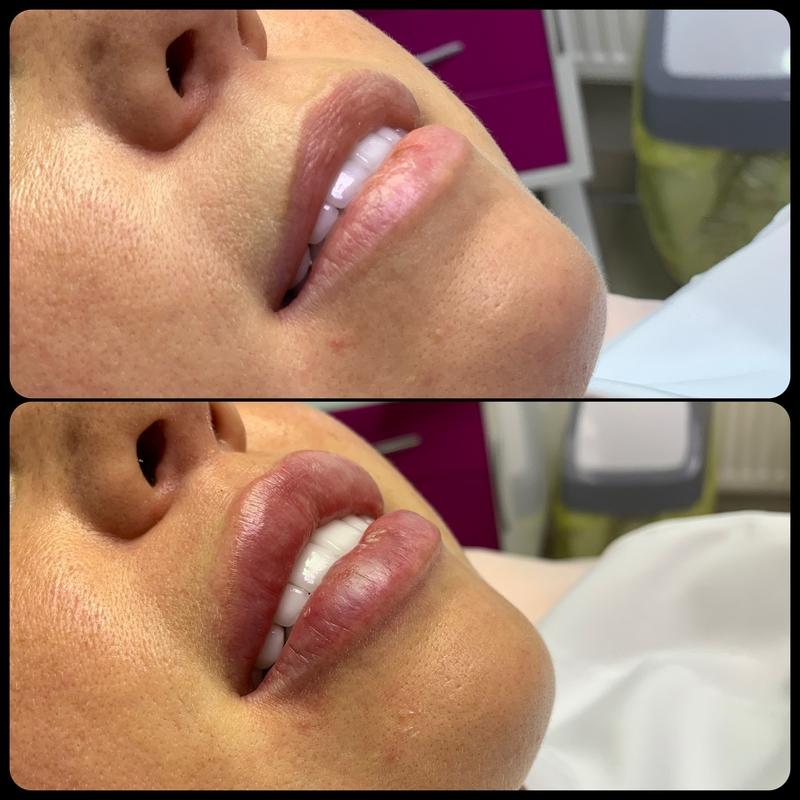 Операция по увеличению губ  - фото до и после | импланты в губы - виды и отличия