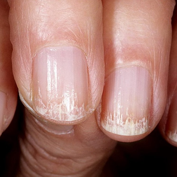 Болезни ногтей на ногах и руках, фото, описание, симптомы