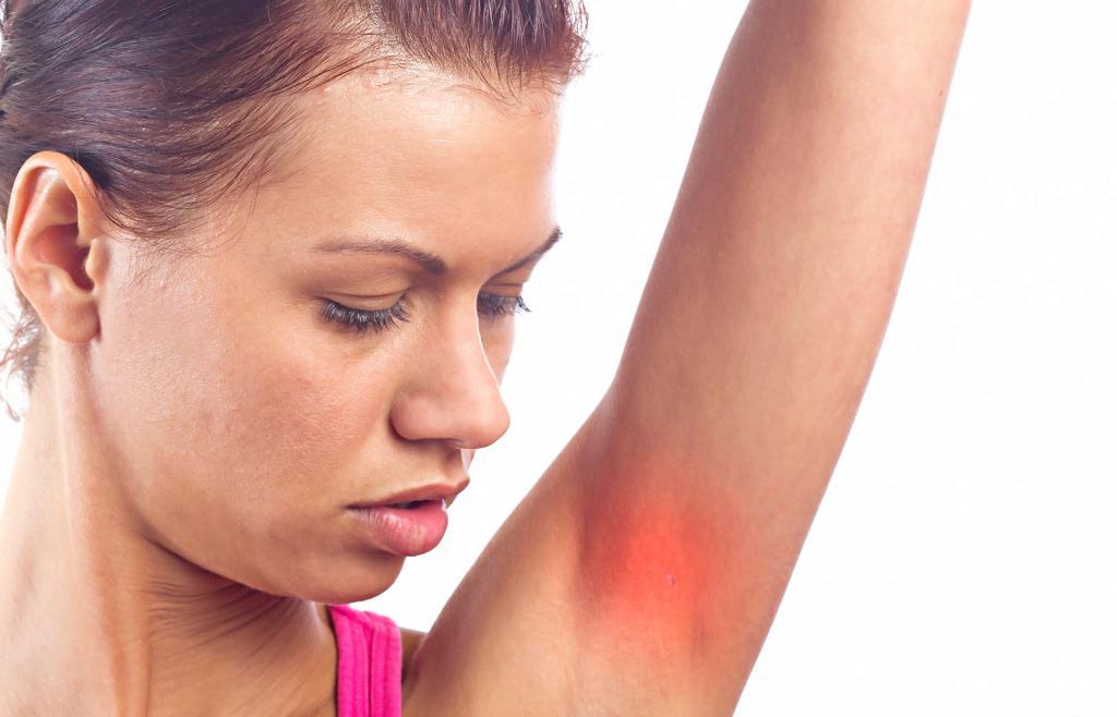 Фурункулез хронический (рецидивирующий) — лечение, причины, симптомы