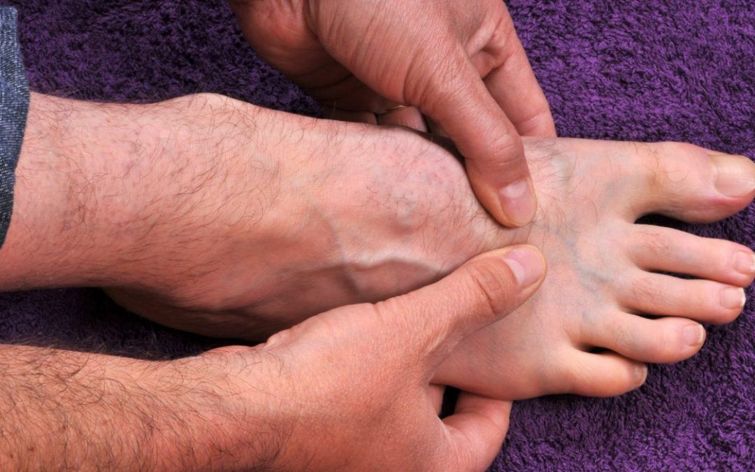 Трещины на пятках: лечение и профилактика