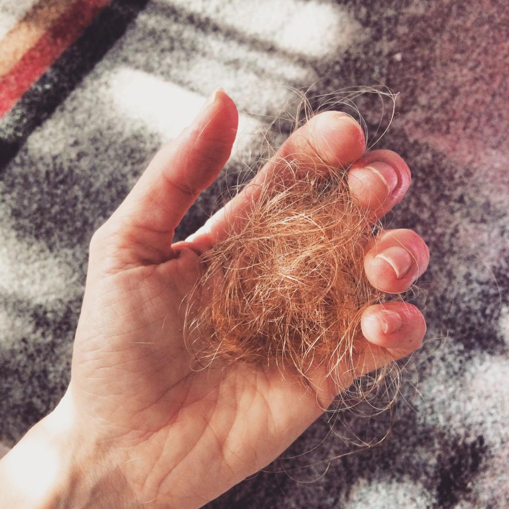 Сонник выпадение части волос. к чему снится выпадение части волос видеть во сне - сонник дома солнца