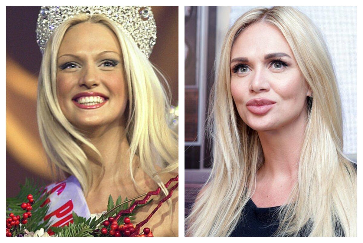Жертвы пластической хирургии: знаменитости россии и звезды по всему миру, мужчины и женщины. фото до и после