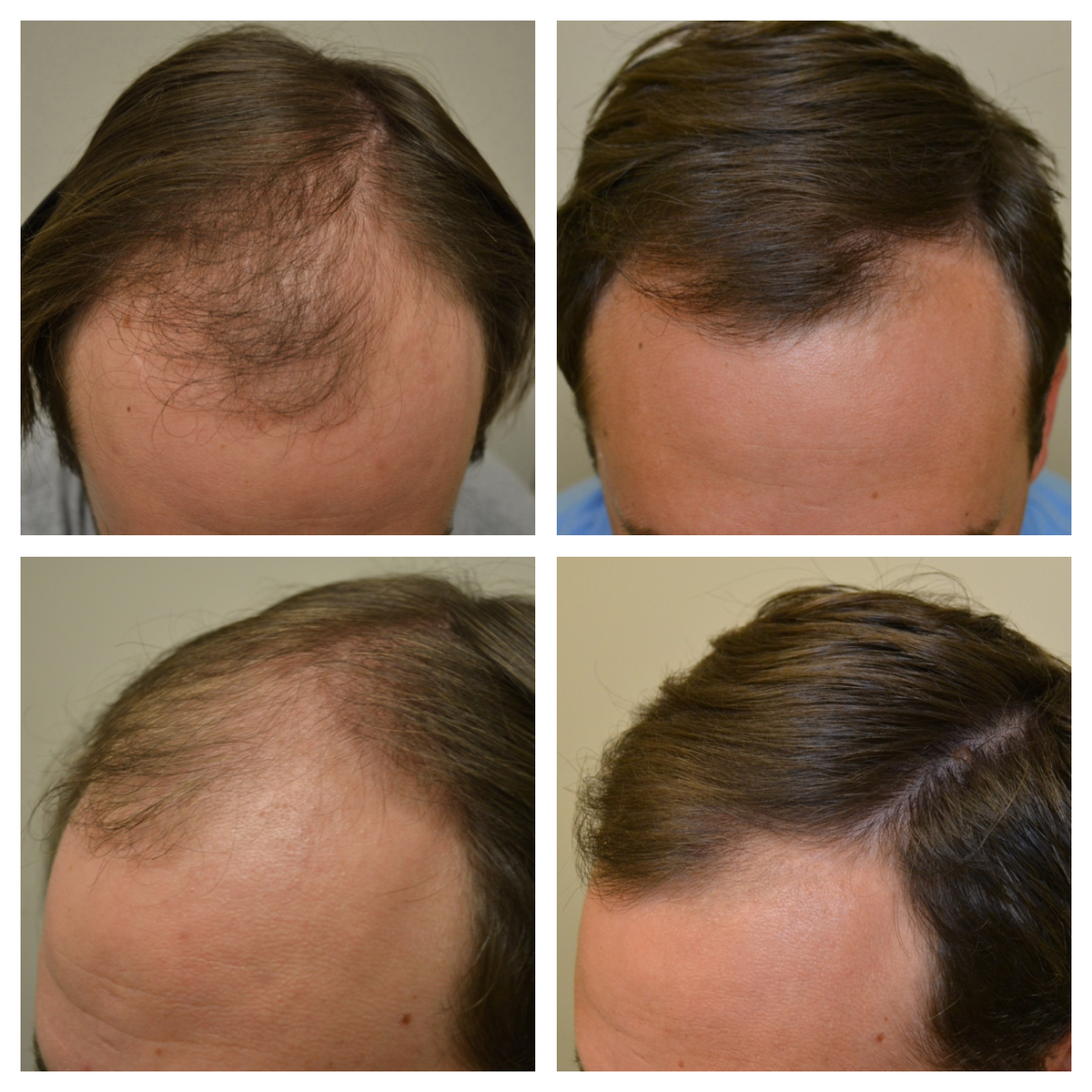 Лечение выпадения волос при помощи «дарсонваля»