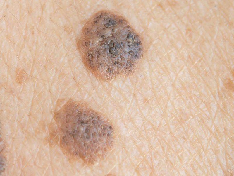 Как быстро развивается меланома: симптомы и сроки