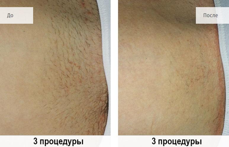 Эффективность лазерной эпиляции: как долго не растут волосы после прохождения курса