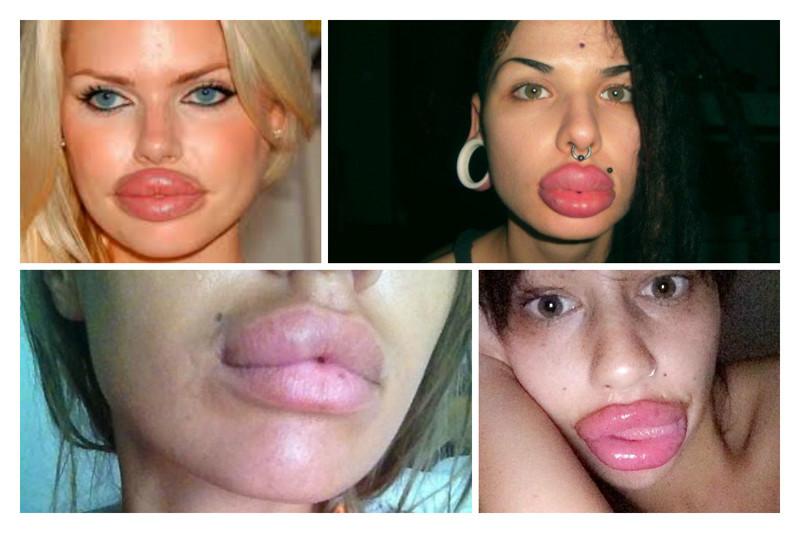 12 фактов, которые надо знать об увеличении губ