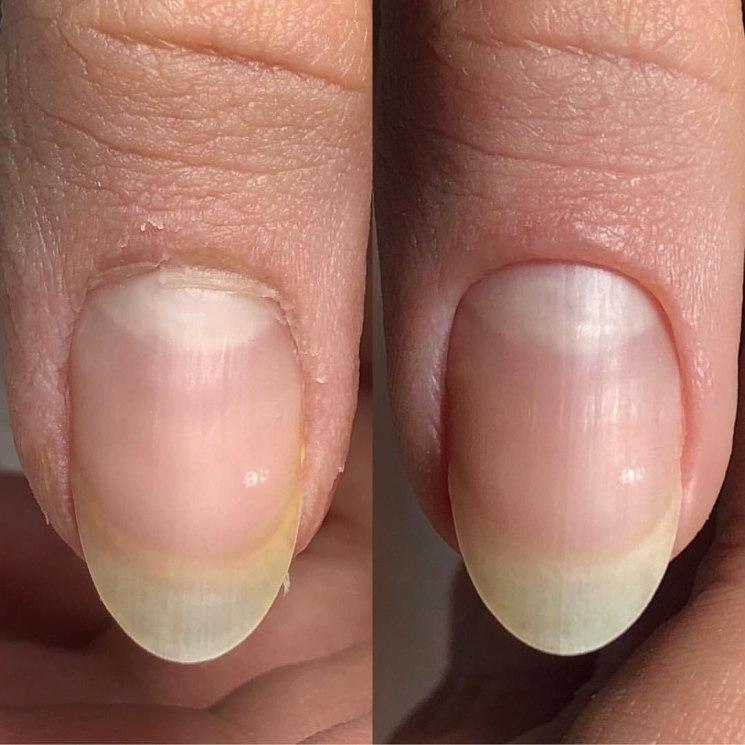 Патологии ногтей: что такоеониходистрофия, почему возникает и как лечится