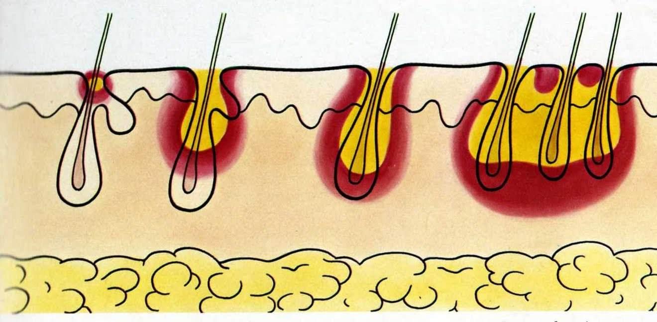Пиодермия. лечение, причины, профилактика и симптомы пиодермии кожи у детей и взрослых.