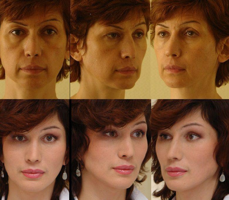 Что такое липофилинг? липофилинг лица, грудных желез, ягодиц, цена, фото до и после