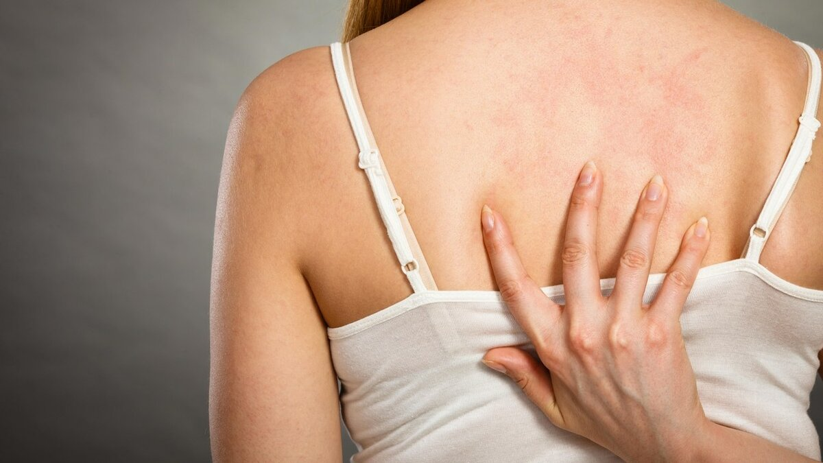 Крапивница у взрослых: симптомы, причины и лечение