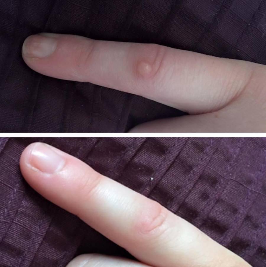 Эффективное удаление подошвенных бородавок при помощи жидкого азота