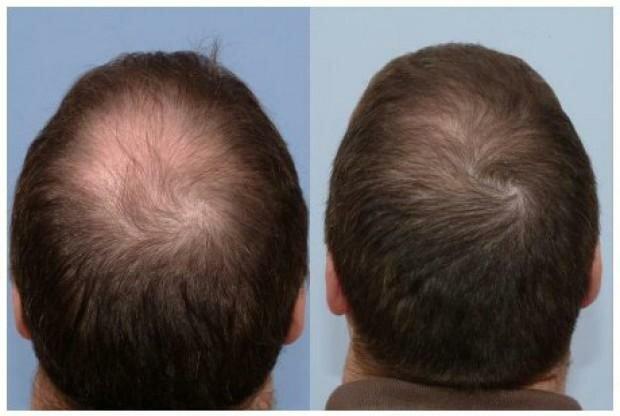 Вызов облысению: эффективность народных средств в борьбе с выпадением волос