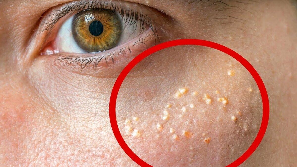 Причины и лечение липомы на лице